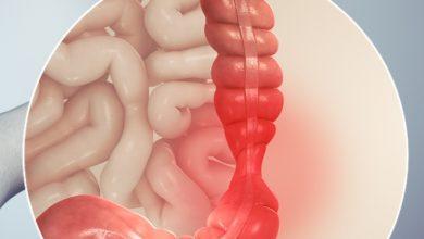 صورة القولون العصبي… أعراضه وكيفية علاجه